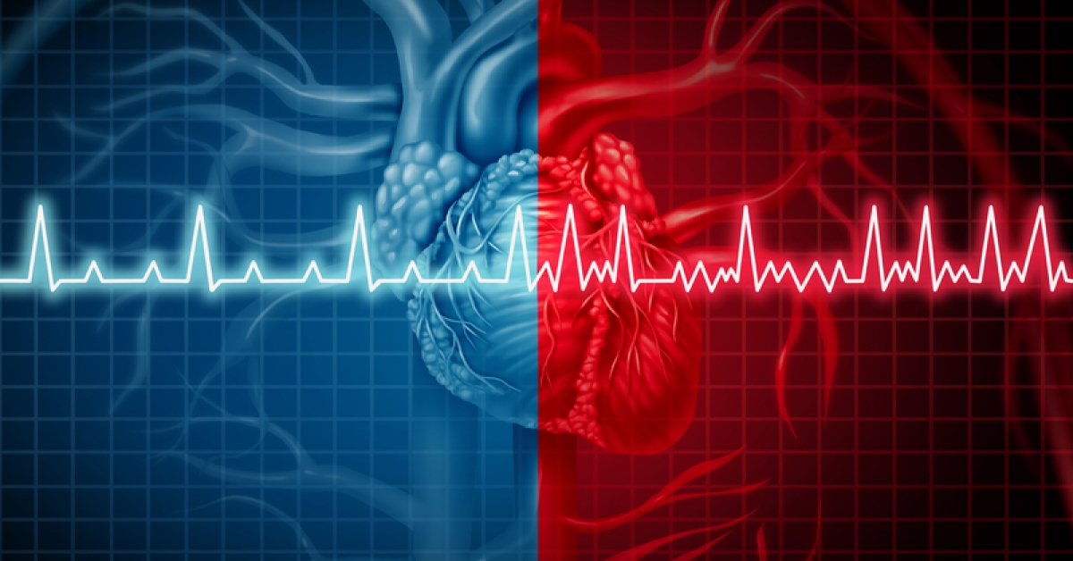 Don't Miss a Beat — AFib Awareness Month