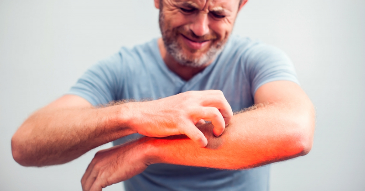 Psoriasis: Things to Know