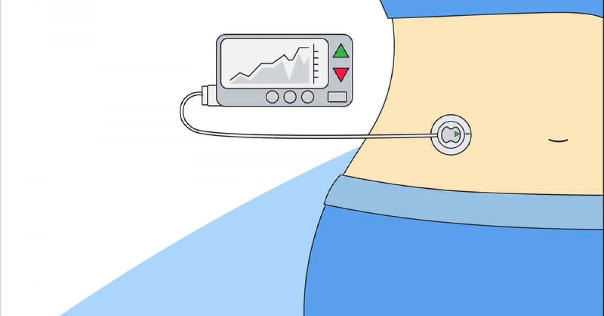 Cybersecurity Risks and Insulin Pumps