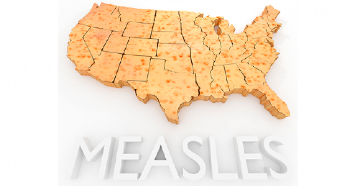 US Measles Update