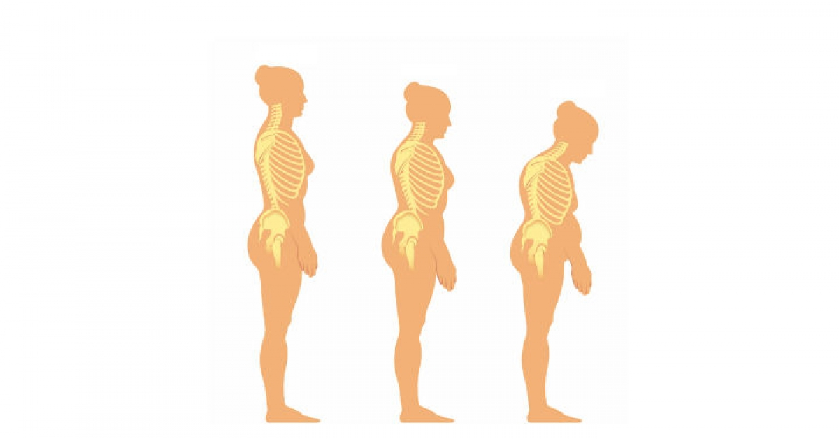 Are You at Risk of Osteoporosis?