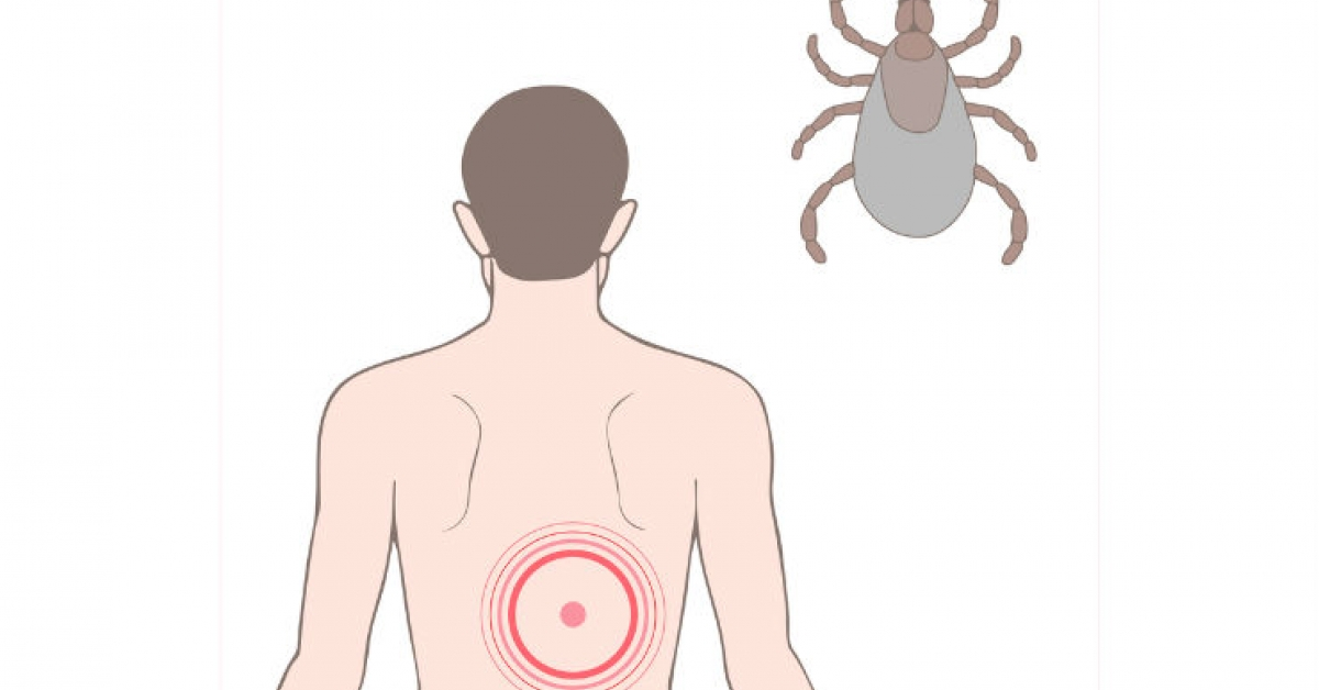 Tick Season Means Lyme Disease