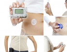 'Artificial Pancreas' Approved